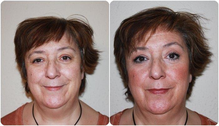 Ana antes y después
