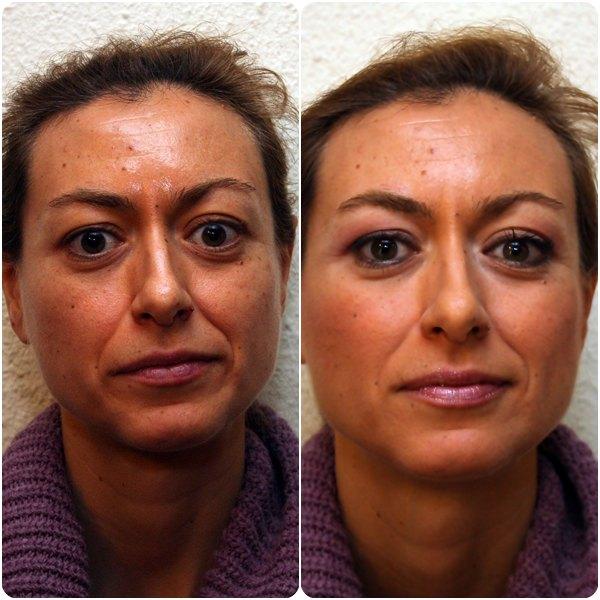 Henar antes y después